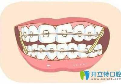 矫正牙齿后演变成蛀牙 为什么牙齿矫正后容易长蛀牙